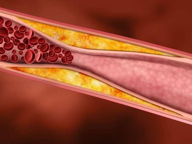 Απαντήσεις για τη χοληστερίνη από τη Δρ. Αναστασία Μοσχοβάκη