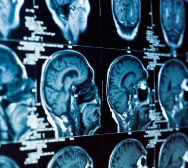 Ρευματοειδής αρθρίτιδα: Πώς οι χρόνιες φλεγμονές επιδρούν στον εγκέφαλο