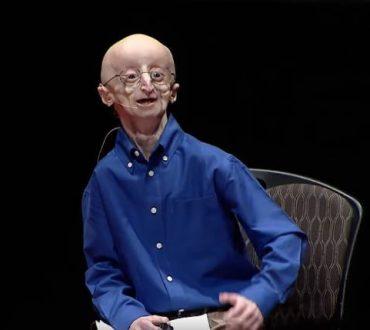 """""""Η φιλοσοφία μου για μια ευτυχισμένη ζωή"""": Η ιστορία του ξεχωριστού Sam Berns (Βίντεο)"""