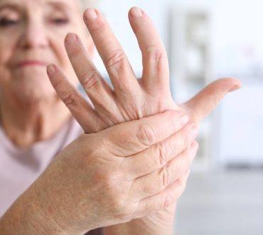 Ρευματοειδής αρθρίτιδα: Ποια είναι τα συμπτώματά της στις γυναίκες