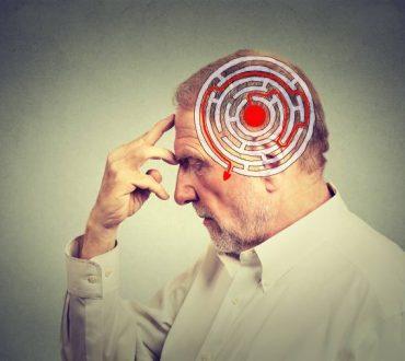 Εγκεφαλικό επεισόδιο: Μπορούν οι αλλαγές στον τρόπο ζωής να «επισκιάσουν» τον κληρονομικό παράγοντα;