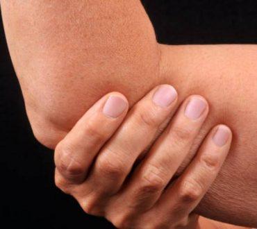 Ρευματοειδής αρθρίτιδα: Έλληνες ερευνητές ανοίγουν το δρόμο για τη θεραπεία της