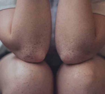 Ρευματοειδής αρθρίτιδα: Τα βασικά σημάδια που δηλώνουν ότι επιδεινώνεται
