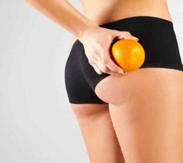 Ποιες τροφές μπορούν να βοηθήσουν στη μείωση της κυτταρίτιδας;