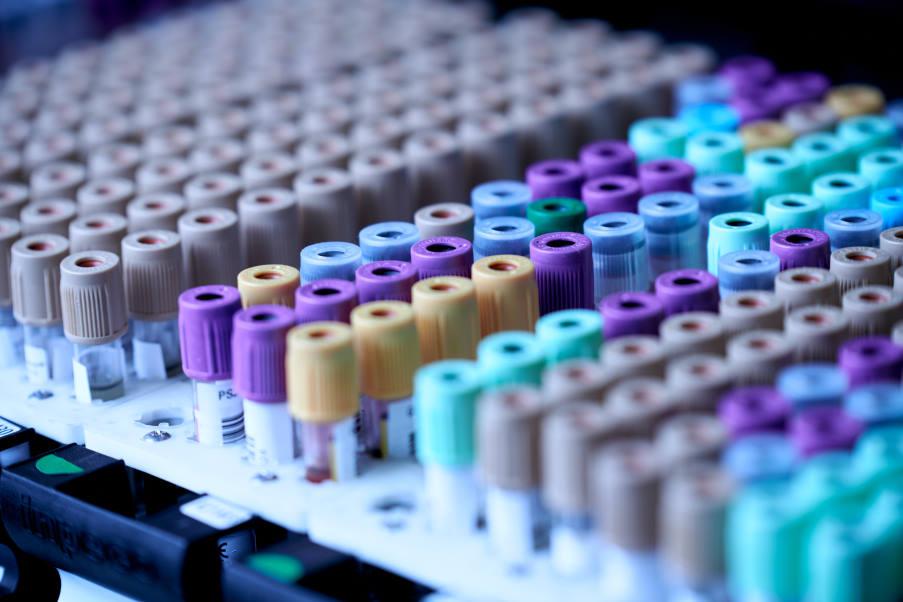 Η Βρετανία ξεκινά τη μεγαλύτερη στον κόσμο δοκιμή εξέτασης αίματος για την ανίχνευση 50 τύπων καρκίνου