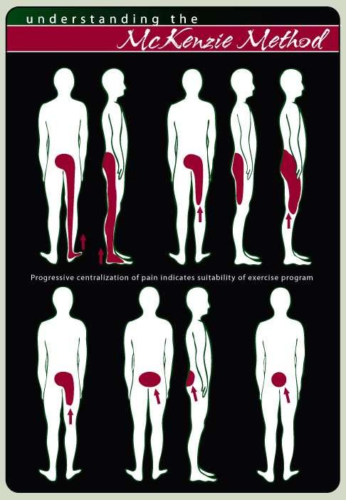Πόνος στα μέση και στα πόδια: Πως να απαλλαγείτε με τη μέθοδο Mckenzie
